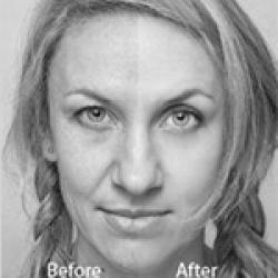 hollywood laser peel bw